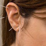 Ear-acupuncture-CLOSE-Edit